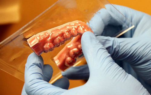Dental 3D Printing: How it's Playing a Bigger Role in Digital Dentistry