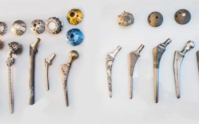 Bone Specialist Dr Kevin Yip Man Hing's view on 3D printed orthopedic implants